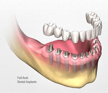 възстановяване на обеззъбена долна челюсте с множество импланит