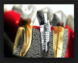 Имплантологични решения