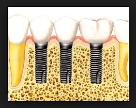 за по-големи дефекти се препоръчва всеки зъб да е заменен от имплант