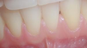добре подържана хигиена без натрупвания и възпалителни изменения