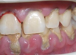 naprednal parodontit