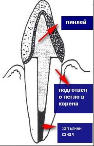 pin shema