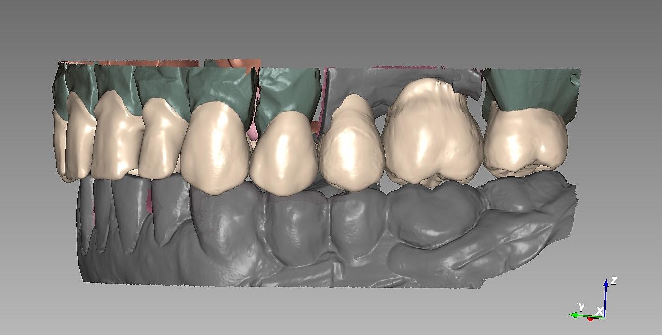 CAD-CAM стоматология от бъдещето вече реалност